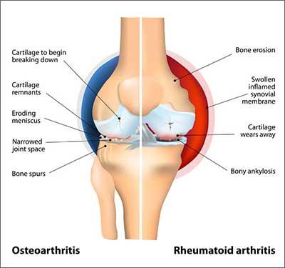 Comparison of Osteoarthritis and Rheumatoid Arthritis